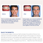 Corrective Jaw Surgery Patient Education Guide (25-Pack)