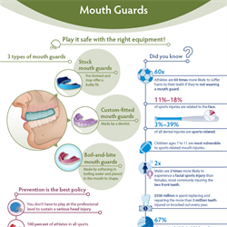 Mouth Guards Infographic (PDF)